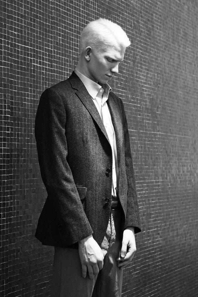 ein männliches Albino-Modell im Jackett steht vor einer Wand aus kleinen Kacheln. Schwarz-Weiss-Modefoto mit Beauty-Spot